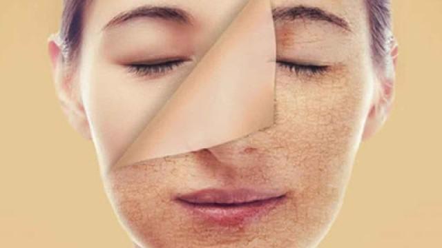 Da có nhiều loại độc tố cần thải ra để tránh tổn thương gây mụn