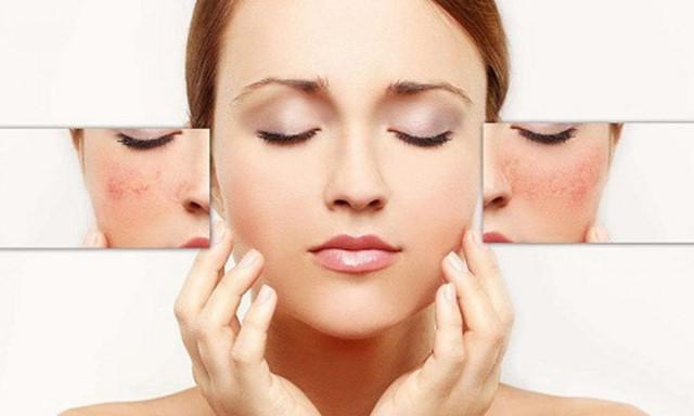 Kem chống corticoid có thể giúp hồi phục làn da bị tổn thương