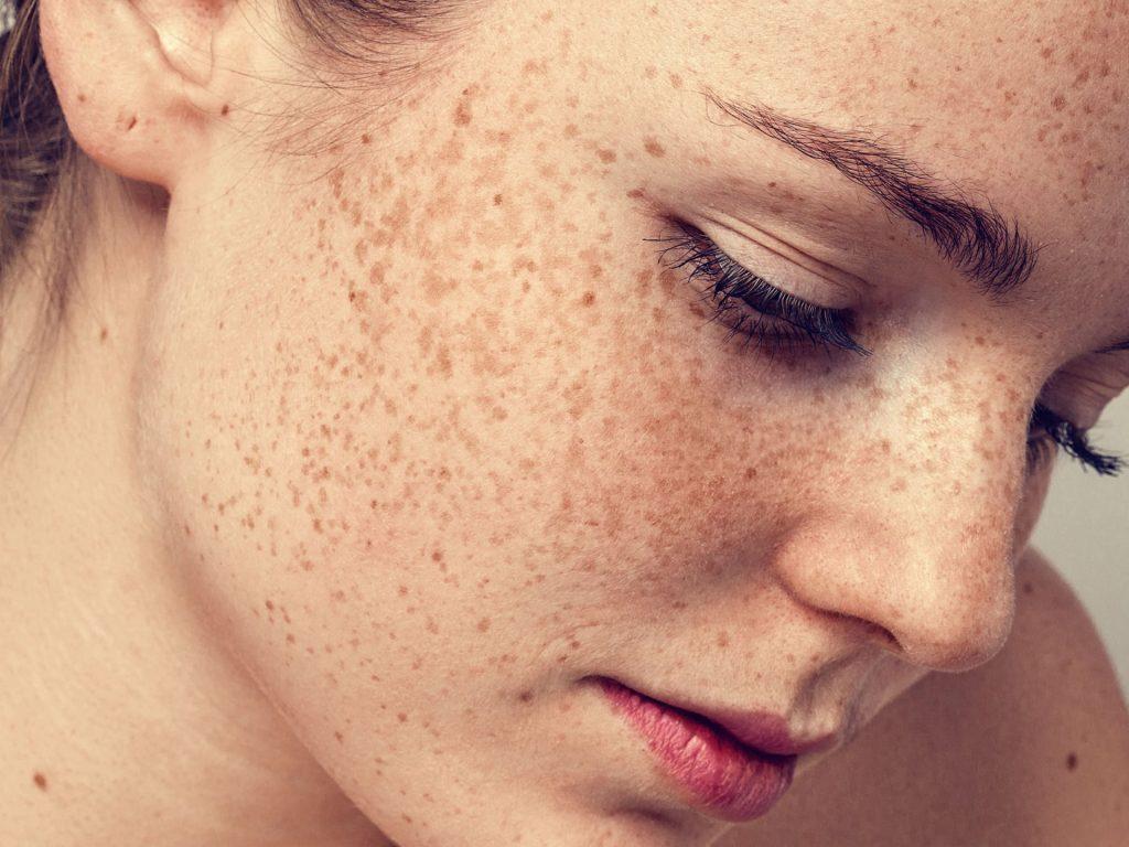 Tàn nhang và nám được cải thiện tốt sau khi dùng serum tế bào gốc rau má